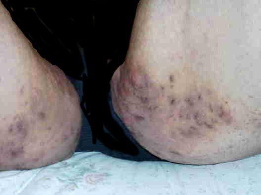 Boils - Treatments, Causes, Symptoms of Boils - WebMD